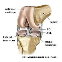 Forecasting the Anterior Cruciate Ligament Rupture Patterns image